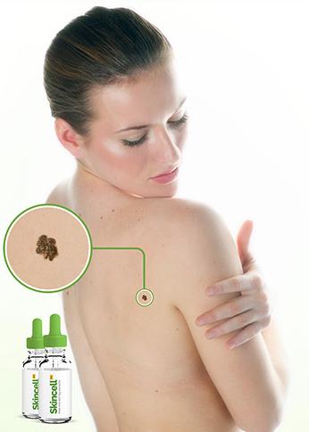 Skincell Pro - bivirkninger