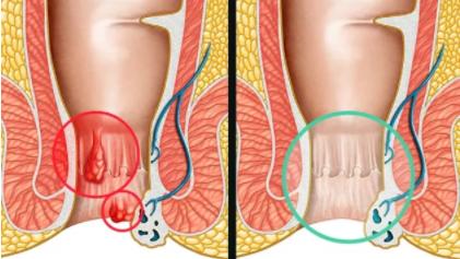 Temiserron Opti - bivirkninger